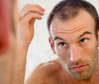 hair-loss-stress