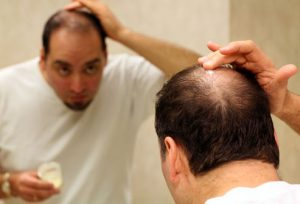 hairloss-solutions