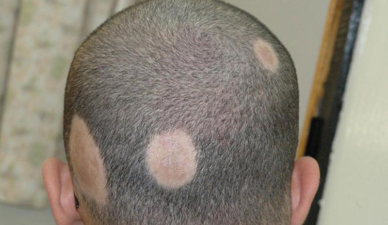 alopecia-hai