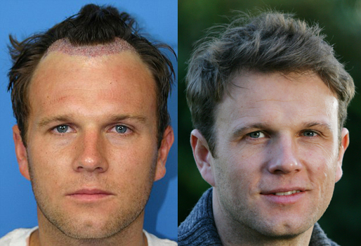 Celebrity hair loss - Is there a big secret? | HIS Hair Clinic