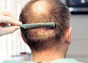 hair-loss-surgery
