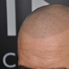 scalp-micropigmentation-promo