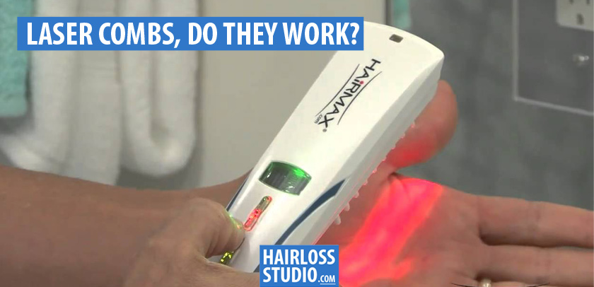 Hair Loss Combs, Do They Actually Work?