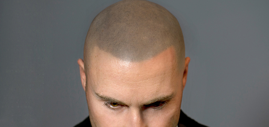 scalp-micropigmentation-cost