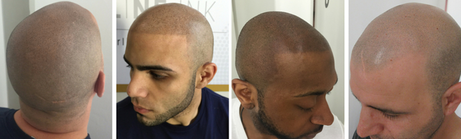 scalp-micropigmentation-customers