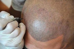 scalp-micropigmentation-process